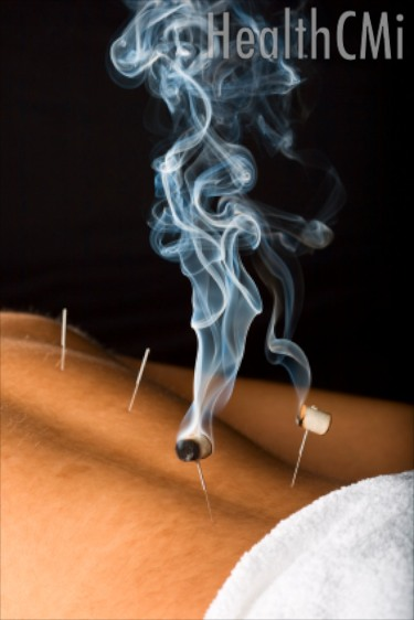 A combination of acupuncture and moxibustion was discovered more effective than an injection-supplement combination.