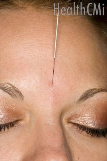 PMS is treated with several types of acupuncture and herbal medicine protocols.