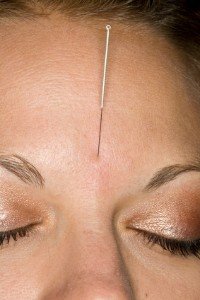 Acupuncture Calms Anxiety Disorder Research