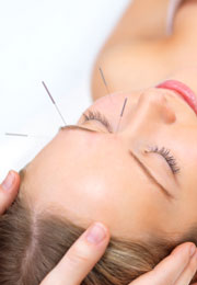 Acupuncture for the treatment of stroke is found effective.