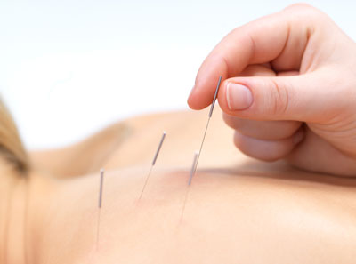 Acupuncture billing