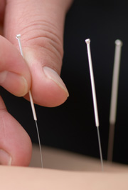Acupuncture is depicted here.