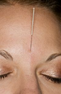 Acupuncture treats acne.