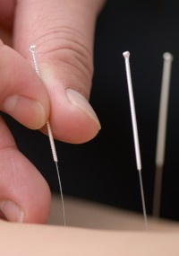 Acupuncture de-qi sensations turn out to be medically important.