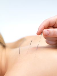 Acupuncture needle technique applied to the back is depicted.