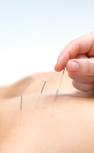 Back Shu point acupuncture is shown here.