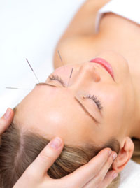 A patient receiving acupuncture is depicted here.