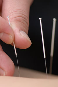 Acupuncture reduces lower back pain.