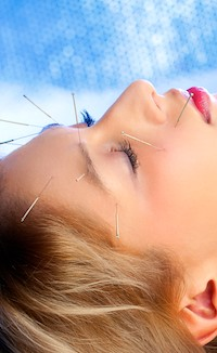 Acupuncture helps patients with sleep, anxiety and depression.
