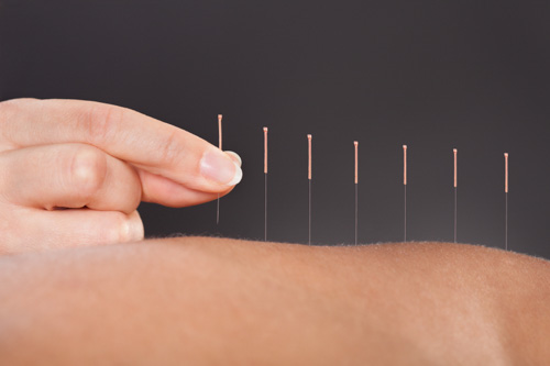 Image result for acupuncture course